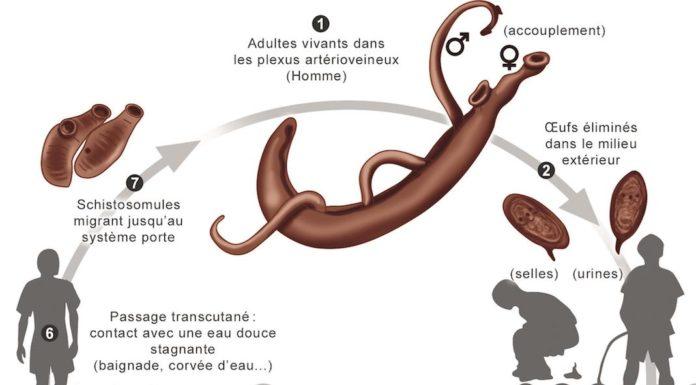 Schistosomiase - Bilharziose