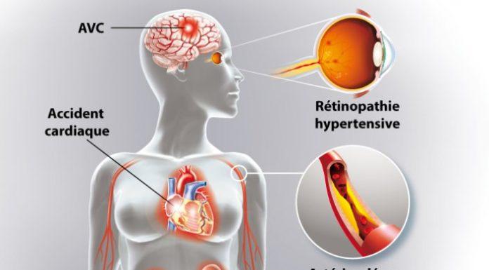 Sémiologie de l'hypertension artérielle (HTA)