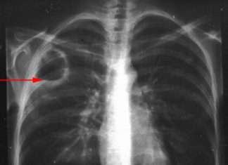 L'abcès du poumon (suppuration parenchymateuse pulmonaire)