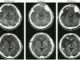 Accidents vasculaires cérébraux ischémique constitués