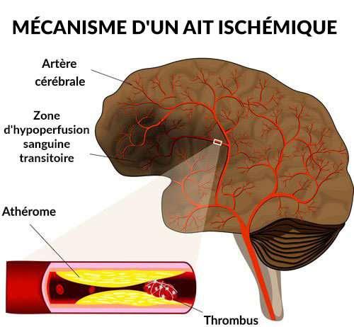Accidents ischémiques transitoires