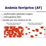 Anémies ferriprives