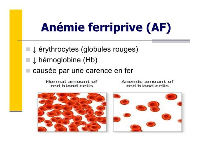 Anémies ferriprives