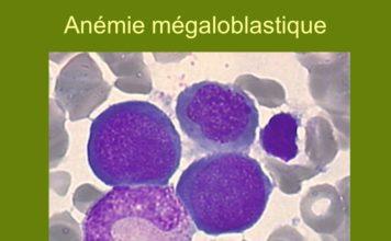 Anémies mégaloblastiques