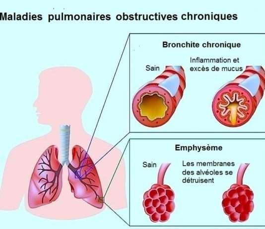 Bronchite aigue