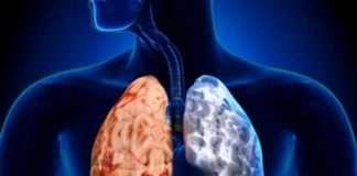 Bronchite chronique