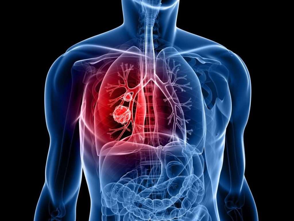 Colorectal cancer nccn. Understanding Colorectal Cancer papilloma virus boca Hpv cancer poumon