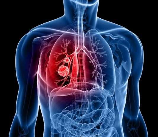 Cancers secondaires du poumon