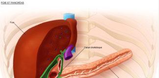 Cancers des voies biliaires extra-hépatiques