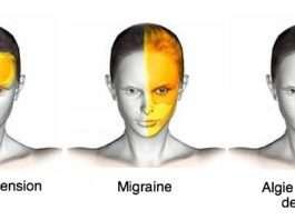 Céphalées et algies de la face