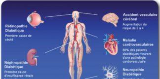 Complications chroniques du diabète sucré