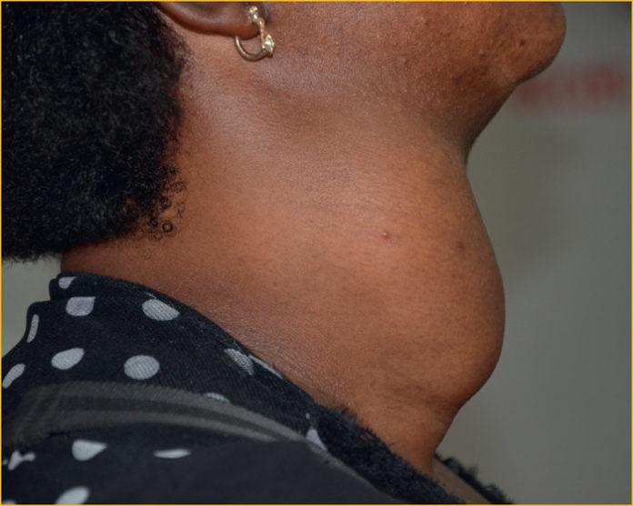 Diagnostic d'une masse cervicale