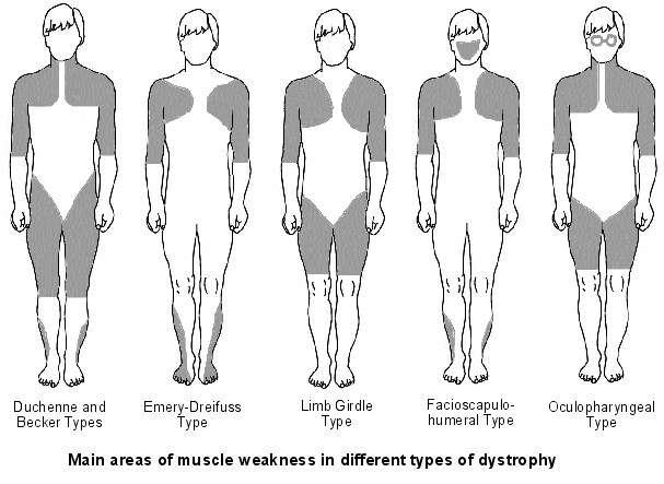 Dystrophies musculaires progressives (DMP)