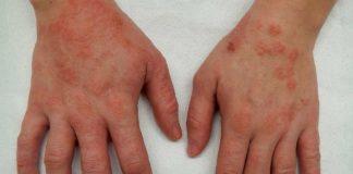 Eczema constitutionnel et de contact