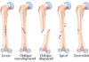 Généralités sur les fractures