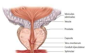 Glande prostatique