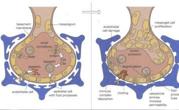 Glomérulonéphrite Aigue (Post infectieuse)