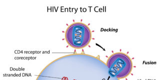 Infection HIV, manifestations cliniques et aspects thérapeutiques