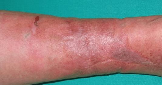 Infection à streptocoque