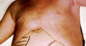 Leishmaniose viscérale de l'enfant