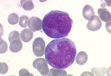 Leucémies aiguës