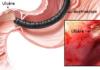 Maladie ulcéreuse gastro-duodénale