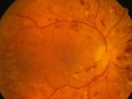 Manifestations ophtalmologiques de L'HTA et de l'artériosclérose