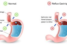"Reflux gastro-oesophagien ""RGO"" et ses complications"