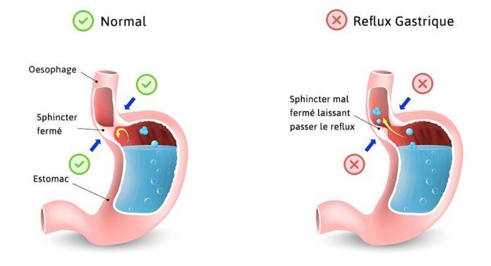 Reflux gastro-oesophagien
