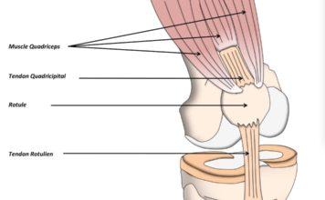 Rupture de l'appareil extenseur du genou