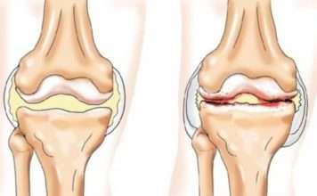 Arthrite septique (conduite à tenir)