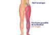 Douleur lombosciatique