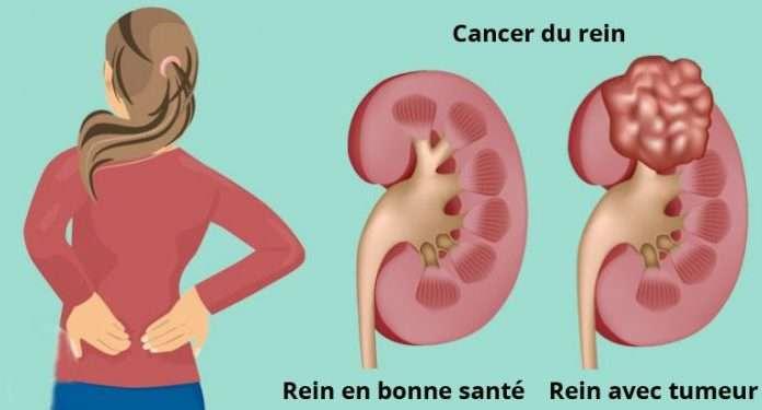 Tumeurs du rein