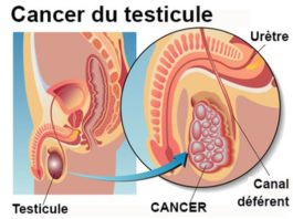 Tumeurs du testicule