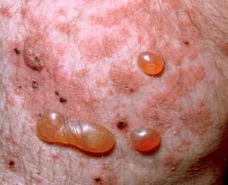 Dermatoses bulleuses