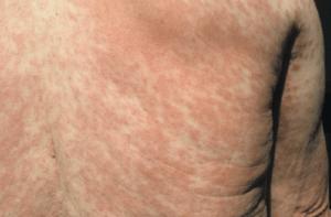 rash morbilliform
