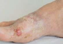 Infections cutanées bactériennes