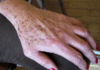 Lentigos séniles sur la face dorsale de la main.