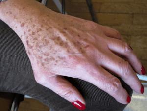 Senile lentigines on the dorsal side of the hand.