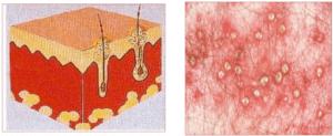 follicular lesion