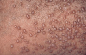 """Multiple papules """"dome"""", confluent in places, during a papular amylose."""