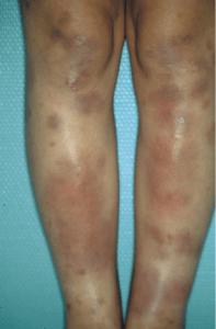 Nouures scattered on both legs (erythema nodosum)