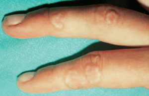 """Papules grouped into """"ring"""" during granuloma annulare."""