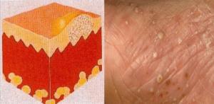 multiple pustules, non-follicular, on erythematous background