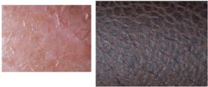 Scales ichtyosiforme