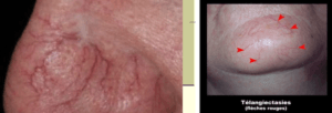Telangiectasias resulting from dilation of superficial vessels of the dermis and disappearing at vitropression.