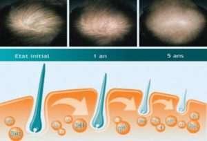 alopecia 5