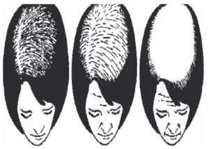 alopecia 7