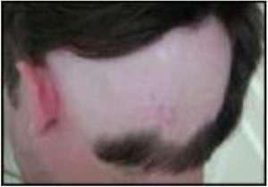alopecia 8