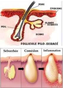 Follicle Pilosebaceous